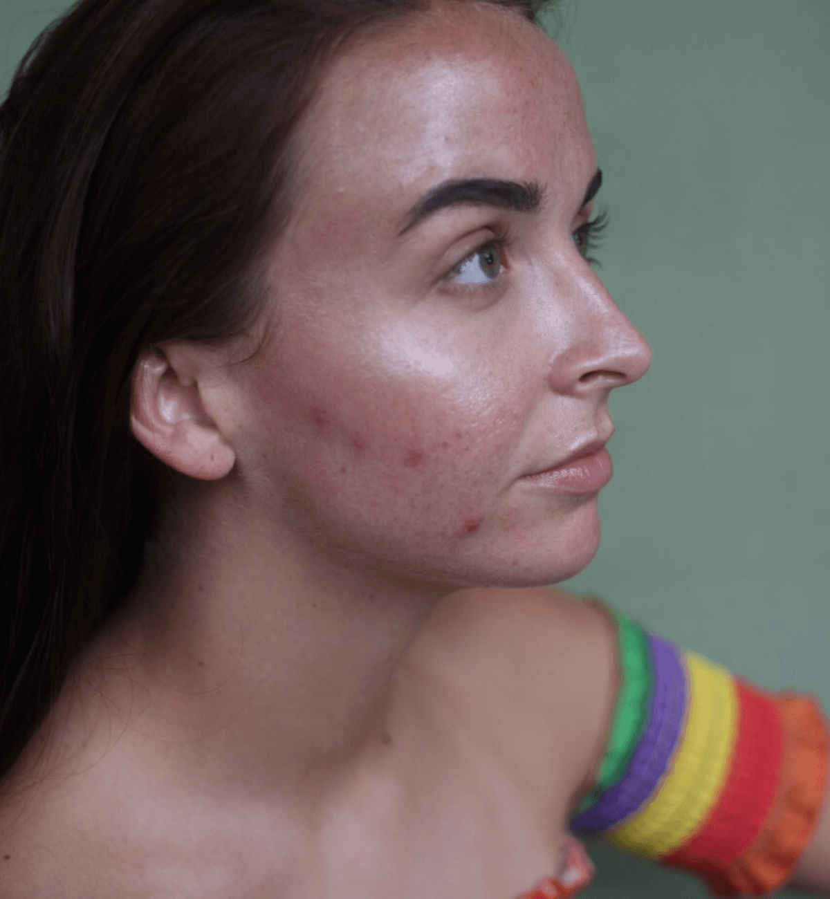 Girl with acne on cheeks whilst travelling