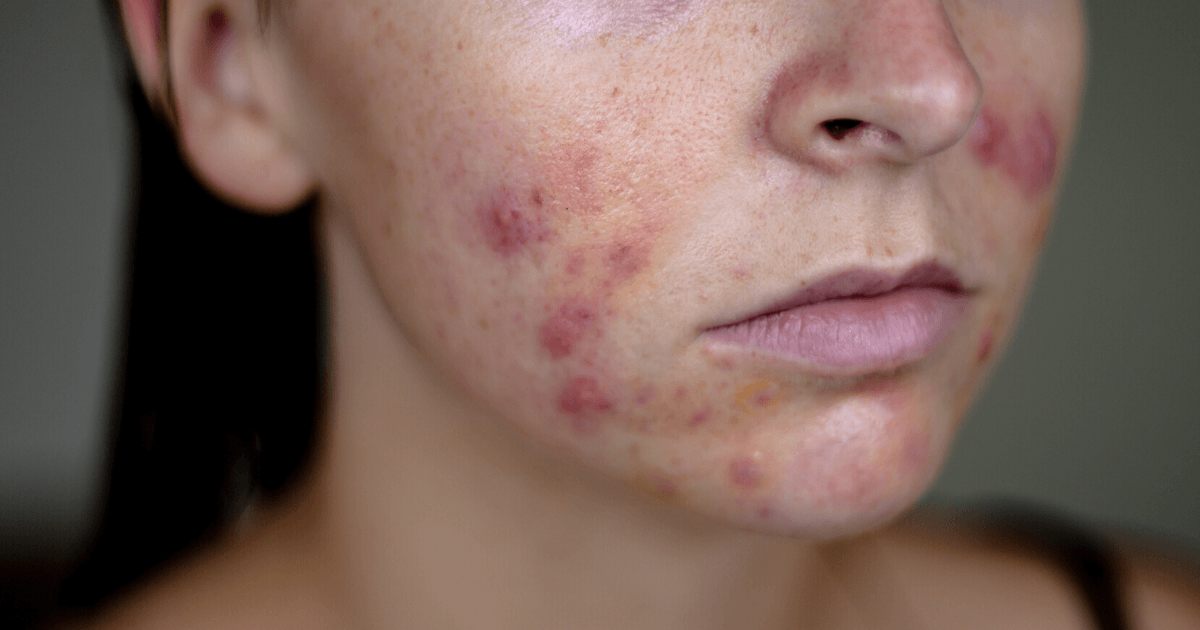Hormonal acne on cheeks