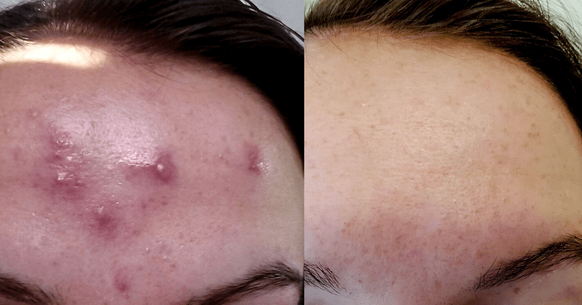 Before and after hormonal acne treatment