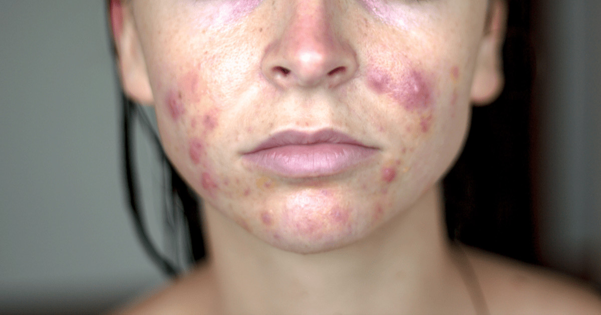 Hormonal acne on cheeks and jaw line