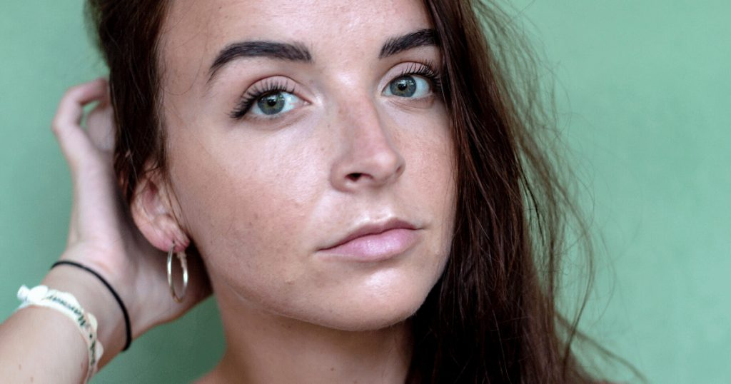 Brunette with acne and dark eyebrows