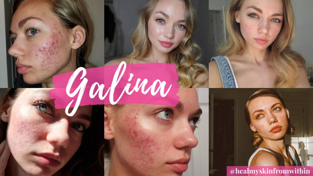 HealMySkinFromWithin from the Instagram Acne Community