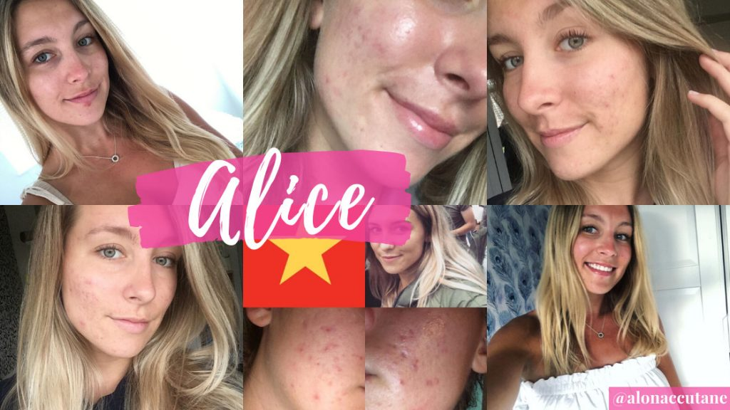 Al on accutane's acne tips