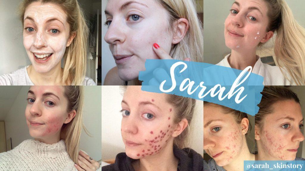 Sarah Skin Story's Acne Tips