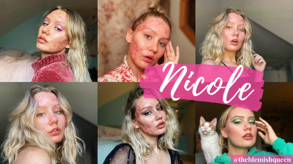 BlemishQueen Acne Community Tips