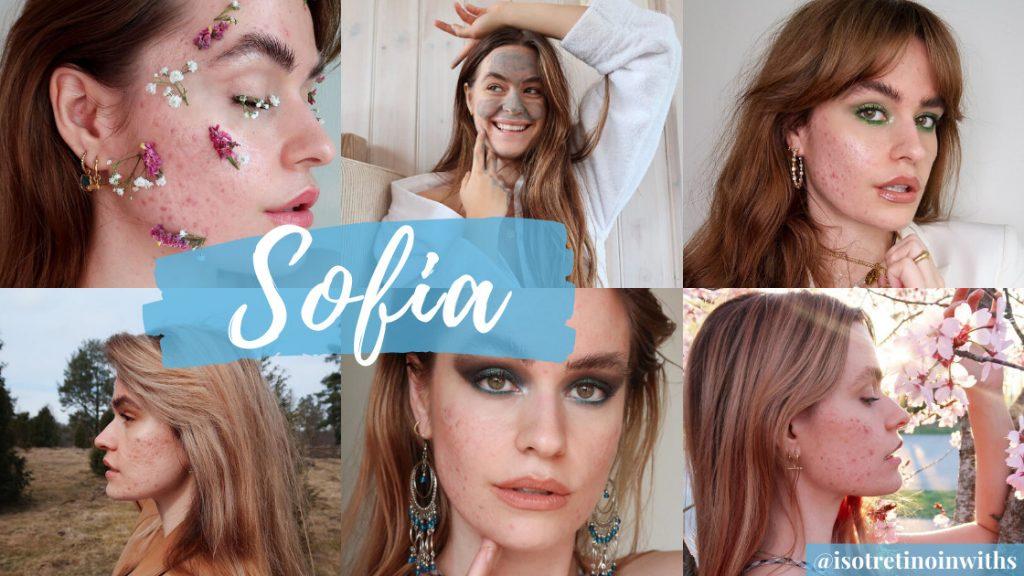 Sofia Grahn's Acne Tips