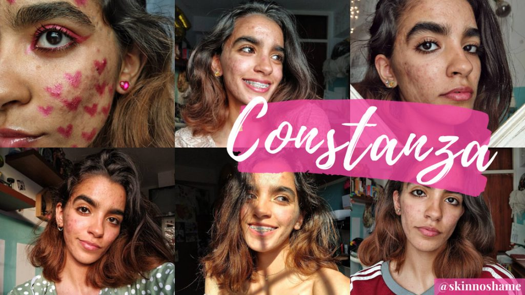 SkinNoShame's tips from the acne community