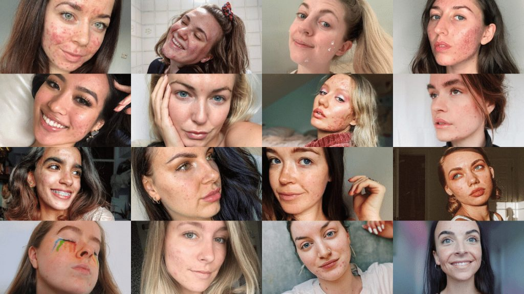Tips for acne from the skin positivity community