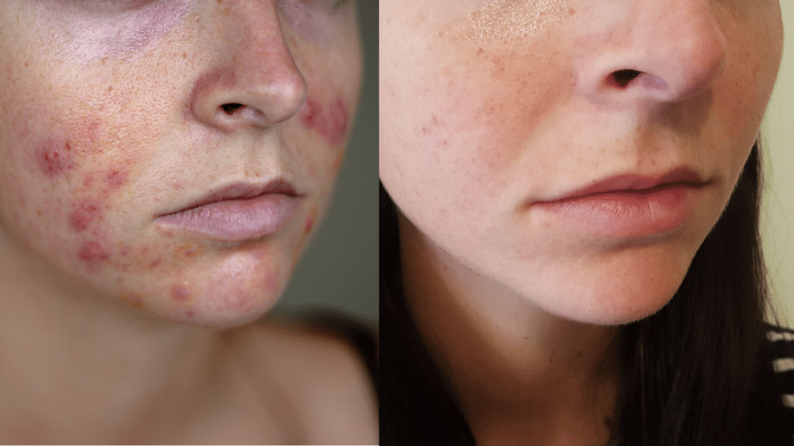 Before and after spironolactone for acne
