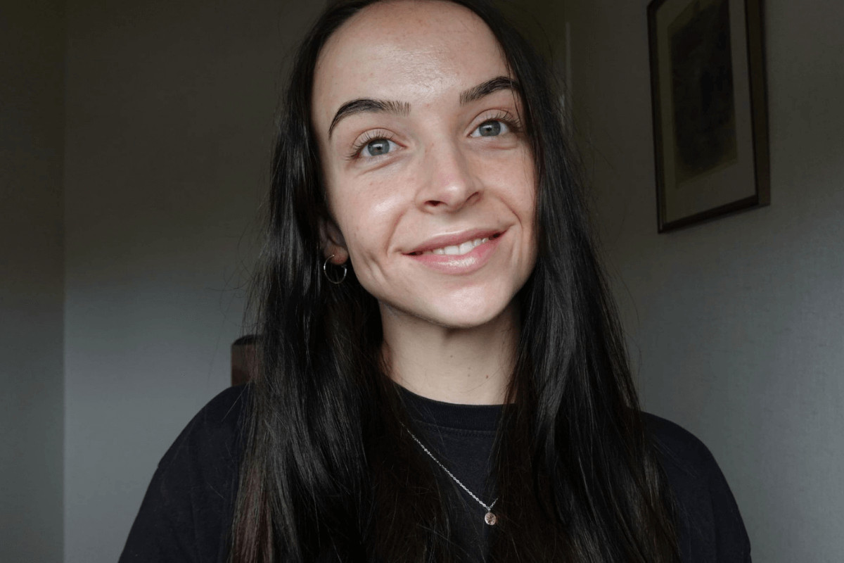 Alice Lang after accutane