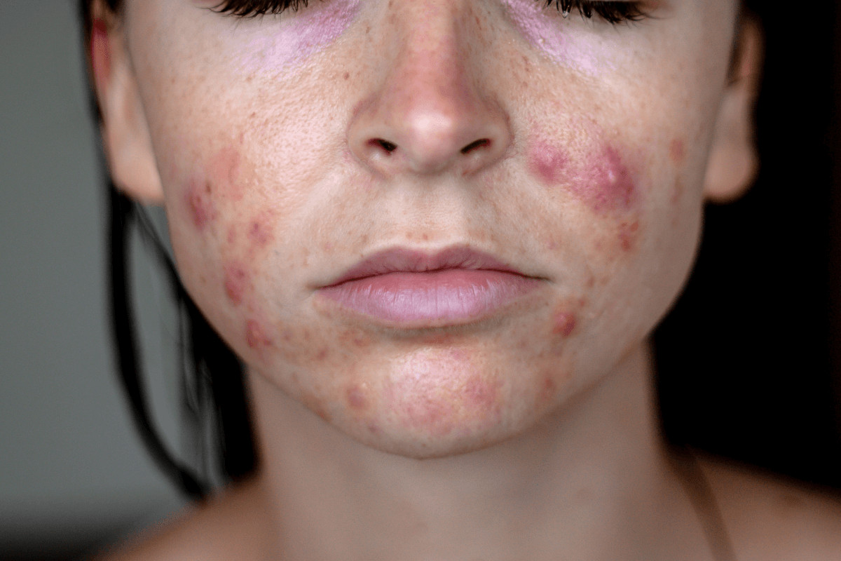 Positives of hormonal acne